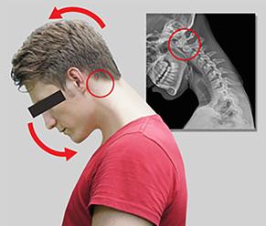tech neck 5